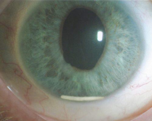 Ozurdex-Implantat, allerdings hier in der Vorderkammer und damit an der falschen Stelle. Richtige Position wäre der Glaskörper und damit unsichtbar für andere