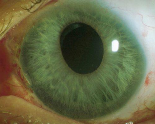 entrundete bzw. verzogene Pupille